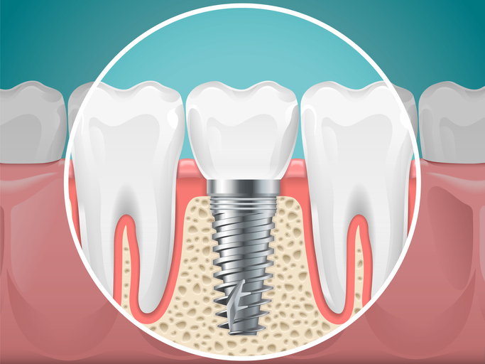 Dental Surgeon Implant San Diego